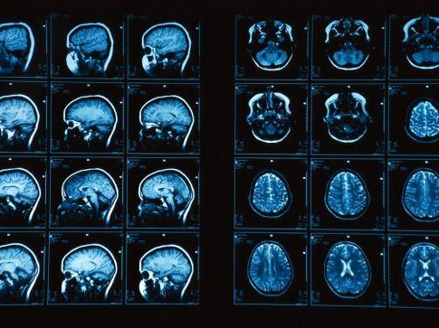brain-mri_848_990x742
