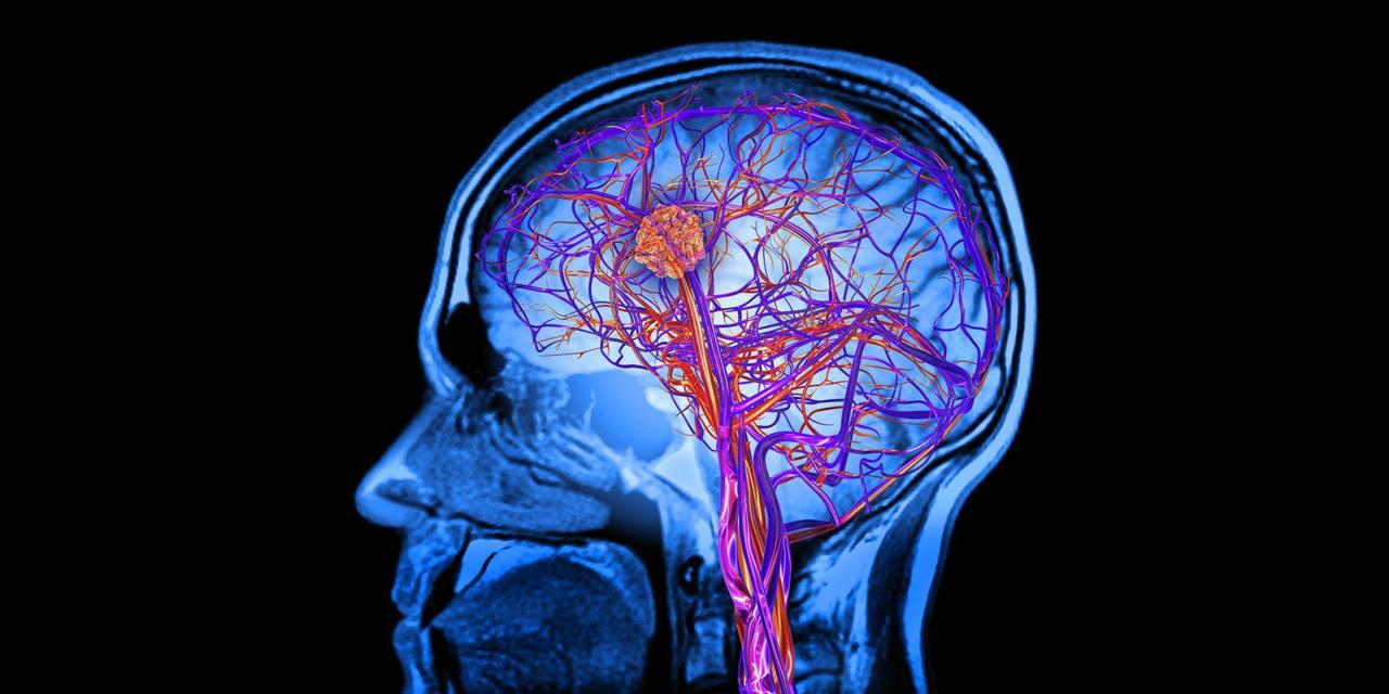 For the first time researchers have been able to see changes in the neural structures in specific areas of the brains of people who suffered severe abuse ... : wiring brain - yogabreezes.com