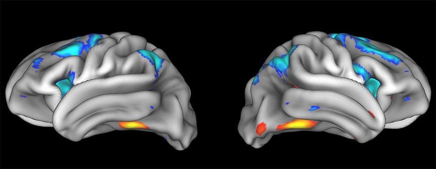 20180213-brain-nida